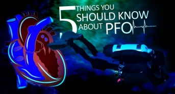 5-things-you-should-know-about-PFO_fb.jpg